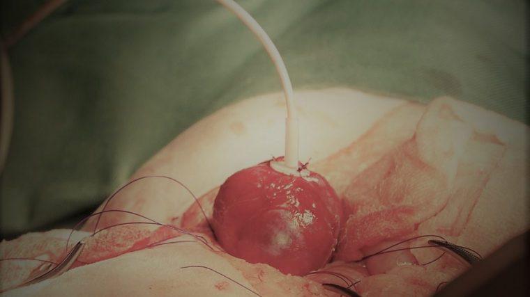 SABシステムを使った猫の尿管結石手術【写真あり】
